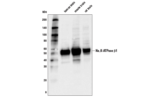 Western Blotting Image 1: Na,K-ATPase β1 (D8W8J) Rabbit mAb
