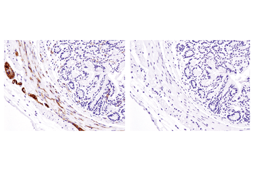 Immunohistochemical analysis of paraffin-embedded mouse colon, untreated (left) or λ phosphatase-treated (right), using Phospho-Tau (Ser404) (D2Z4G) Rabbit mAb (IHC Preferred).