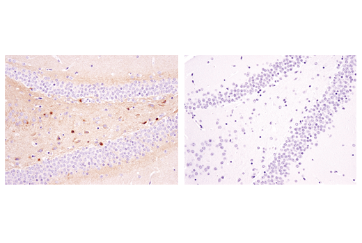 Immunohistochemical analysis of paraffin-embedded mouse brain using Phospho-Tau (Ser404) (D2Z4G) Rabbit mAb (IHC Preferred) in the presence of non-phosphorylated tau peptide (left) and antigen-specific phospho-tau (Ser404) peptide (right).