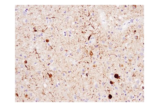 Immunohistochemical analysis of paraffin-embedded human Alzheimer's brain using Phospho-Tau (Ser404) (D2Z4G) Rabbit mAb (IHC Preferred).