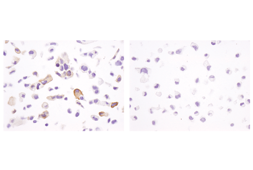 Immunohistochemical analysis of paraffin-embedded T-47D cell pellets (left, positive) and MDA-MB-231 cell pellets (right, negative) using Phospho-Tau (Ser404) (D2Z4G) Rabbit mAb (IHC Preferred).