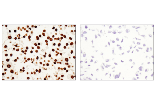 Immunohistochemical analysis of paraffin-embedded LNCaP cell pellet (left, positive) and DU 145 cell pellet (right, negative) using HOXB13 (D7N8O) Rabbit mAb.