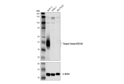 Western blot analysis of extracts from BxPC-3 cells, PANC-1 cells, and Mia PaCa2 cells using Tissue Factor/CD142 Antibody (upper) and β-Actin (D6A8) Rabbit mAb #8457 (lower). As expected, Tissue Factor/CD142 protein is not detected in either Mia PaCa2 cells or PANC-1 cells.
