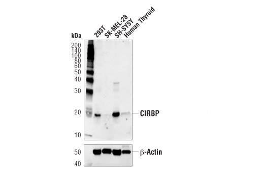 Western blot analysis of 293T, SK-MEL-28, and SH-SY5Y cells, and human thyroid tissue extracts, using CIRBP (D1M8D) Rabbit mAb (upper) and β-Actin (D6A8) Rabbit mAb #8457 (lower).