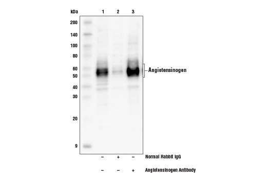 Immunoprecipitation of angiotensinogen protein from Hep G2 cell extracts. Lane 1 is 10% input, lane 2 is Normal Rabbit IgG #2729, and lane 3 is Angiotensinogen Antibody. Western blot analysis was performed using Angiotensinogen Antibody and Mouse Anti-rabbit IgG (Conformation Specific) (L27A9) mAb (HRP conjugated) #5127.
