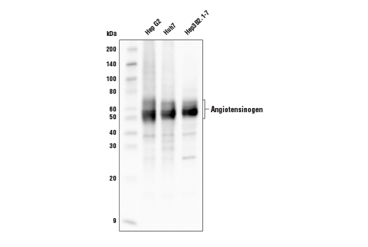 Western blot analysis of extracts from Hep G2, Huh7, and Hep3B2.1-7 cell lines using Angiotensinogen Antibody.
