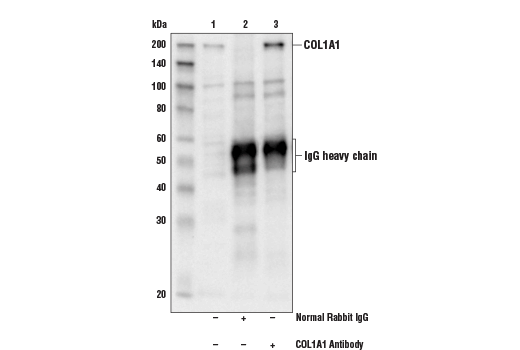 Immunoprecipitation of COL1A1 protein from U118 cell extracts. Lane 1 is 10% input, lane 2 is Normal Rabbit IgG #2729, and lane 3 is COL1A1 Antibody. Western blot analysis was performed using COL1A1 Antibody.