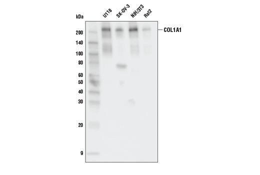 Western blot analysis of concentrated medias from various cell lines using COL1A1 Antibody.