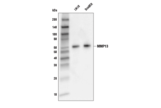 Western blot analysis of extracts from concentrated culture medium of LN18 and ScaBER cell lines using MMP-13 Antibody.