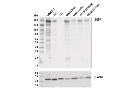 Western blot analysis of extracts from various mouse cell lines and tissues using EGF Receptor (D1P9C) Rabbit mAb (Mouse Preferred) (upper) or β-Actin (D6A8) Rabbit mAb #8457 (lower).