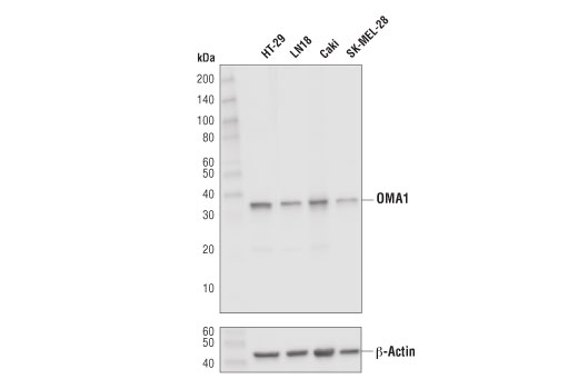Western blot analysis of extracts from various cell lines using OMA1 (D4J7K) Rabbit mAb (upper) or β-Actin (D6A8) Rabbit mAb #8457 (lower). Mature OMA1 is smaller than its precursor, which has a calculated molecular weight of 59 kDa.