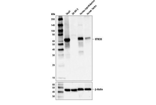 Western blot analysis of extracts from various cell lines and tissues using STK33 (D3S4R) Rabbit mAb (upper) and β-Actin (D6A8) Rabbit mAb #8457 (lower).