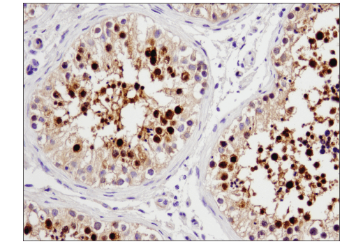 Immunohistochemical analysis of paraffin-embedded human testis using STK33 (D3S4R) Rabbit mAb.