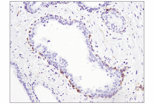 Immunohistochemical analysis of paraffin-embedded human prostate carcinoma using STK33 (D3S4R) Rabbit mAb.