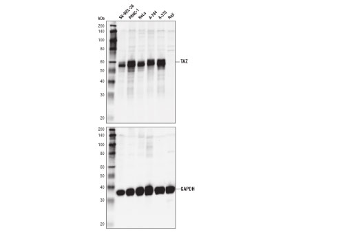 Image 23: Hippo Pathway: Upstream Signaling Antibody Sampler Kit
