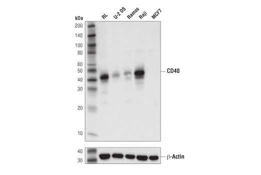 Western blot analysis of extracts from various cell lines and tissues using CD40 (D8W3N) Rabbit mAb (upper) and β-Actin (D6A8) Rabbit mAb #8457 (lower).