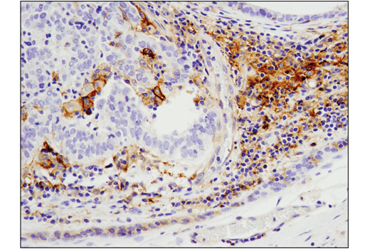 Imunohistochemical analysis of paraffin-embedded human infiltrating ductal carcinoma of the breast using CD40 (D8W3N) Rabbit mAb performed on the Leica® BOND™ Rx.