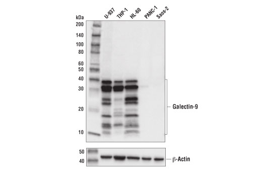 Monoclonal Antibody - Galectin-9 (D9R4A) XP® Rabbit mAb, UniProt ID O00182, Entrez ID 3965 #54330 - Immunology and Inflammation