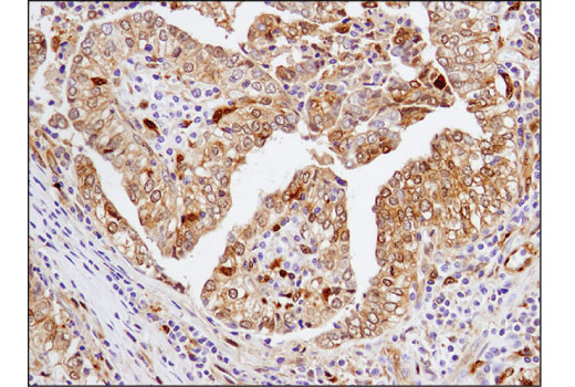 Immunohistochemical analysis of paraffin-embedded human breast carcinoma using Galectin-9 (D9R4A) XP<sup>®</sup> Rabbit mAb.