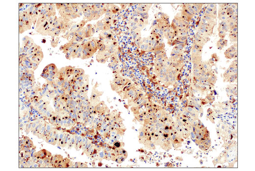 Immunohistochemical analysis of paraffin-embedded human non-small cell lung carcinoma using Galectin-9 (D9R4A) XP® Rabbit mAb performed on the Leica® Bond™ Rx.