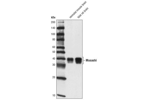 Monoclonal Antibody - Musashi (D46A8) Rabbit mAb - Western Blotting, UniProt ID O43347, Entrez ID 4440 #85652