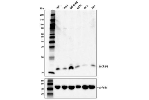 Monoclonal Antibody - MCRIP1 (D2Y8V) Rabbit mAb - Immunoprecipitation, Western Blotting, UniProt ID C9JLW8, Entrez ID 348262 #78128 - Map Kinase Signaling
