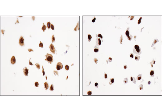 Immunohistochemical analysis of paraffin-embedded HeLa cell pellets, untreated (left) or treated with Dexamethasone #14776 (right), using Glucocorticoid Receptor (D4X9S) Mouse mAb.