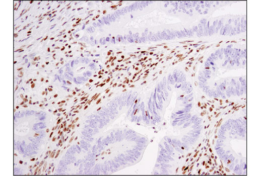 Immunohistochemical analysis of paraffin-embedded human colon carcinoma using Glucocorticoid Receptor (D4X9S) Mouse mAb.
