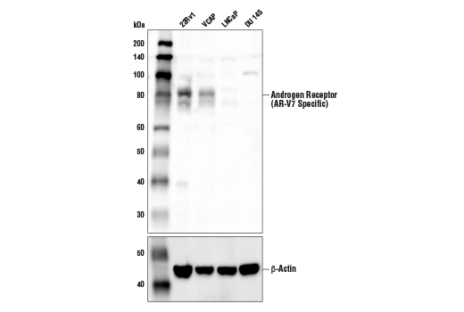 Western blot analysis of extracts from various cell lines using Androgen Receptor (AR-V7 Specific) Antibody (upper) and β-Actin (D6A8) Rabbit mAb #8457 (lower). Signal corresponding to the androgen receptor V7 isoform is detected in 22Rv1 and VCAP cells (AR-V7-positive), but is not detected in LNCaP and DU 145 cells (AR-V7-negative), confirming specificity of the antibody.