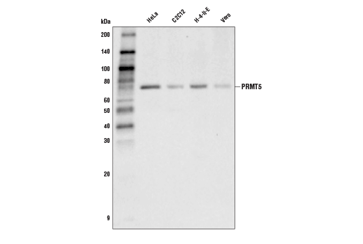 Western blot analysis of extracts from various cell lines using PRMT5 (D5P2T) Rabbit mAb.