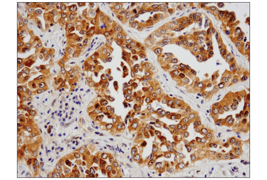 Immunohistochemical analysis of paraffin-embedded human non-small cell lung carcinoma using PRMT5 (D5P2T) Rabbit mAb.