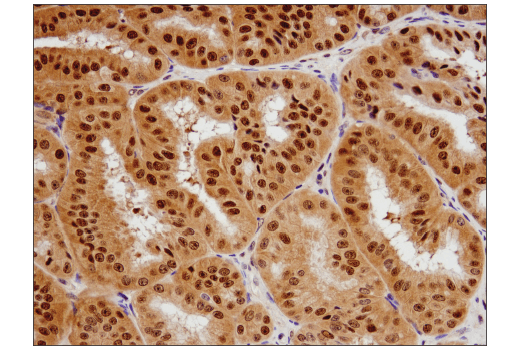 Immunohistochemical analysis of paraffin-embedded human endometrioid adenocarcinoma using PRMT5 (D5P2T) Rabbit mAb.