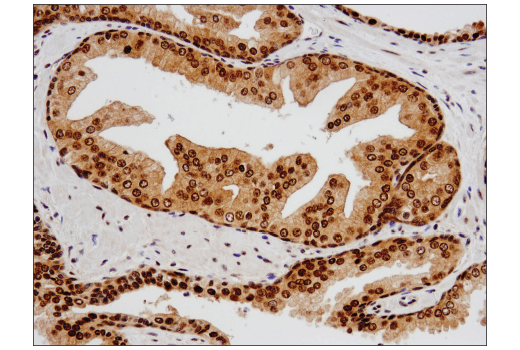 Immunohistochemical analysis of paraffin-embedded human prostate carcinoma using PRMT5 (D5P2T) Rabbit mAb.