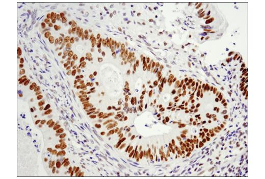 Immunohistochemical analysis of paraffin-embedded human colon carcinoma using LRF/Pokemon (D7U2O) Rabbit mAb.