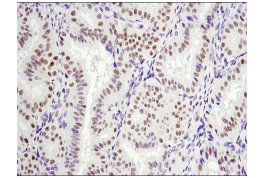 Immunohistochemical analysis of paraffin-embedded human endometrioid adenocarcinoma using LRF/Pokemon (D7U2O) Rabbit mAb.