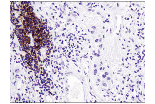 Immunohistochemical analysis of paraffin-embedded human lung carcinoma using CXCR5 (D6L3C) Rabbit mAb (IHC Specific).