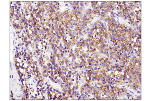 Immunohistochemical analysis of paraffin-embedded human non-Hodgkin's lymphoma using CXCR5 (D6L3C) Rabbit mAb (IHC Specific).