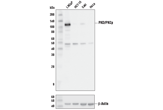 Monoclonal Antibody - PKD/PKCμ (D4J1N) Rabbit mAb - Immunoprecipitation, Western Blotting, UniProt ID Q15139, Entrez ID 5587 #90039 - Ca, Camp and Lipid Signaling