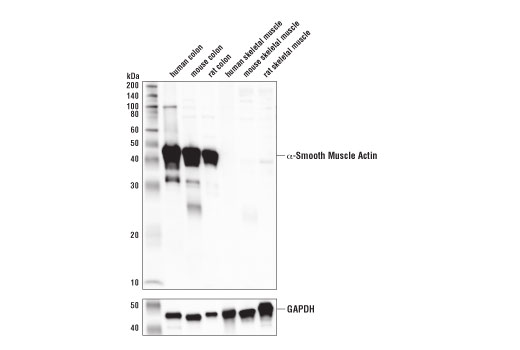 Western blot analysis of extracts from various tissues using α-Smooth Muscle Actin (1A4) Mouse mAb (IF Formulated) (upper) and GAPDH (D16H11) XP<sup>®</sup> Rabbit mAb #5174 (lower). As expected, skeletal muscle samples are negative for α-smooth muscle actin.