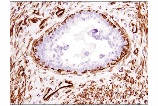Immunohistochemical analysis of paraffin-embedded human ductal carcinoma of the breast using α-Smooth Muscle Actin (1A4) Mouse mAb (IHC Formulated).