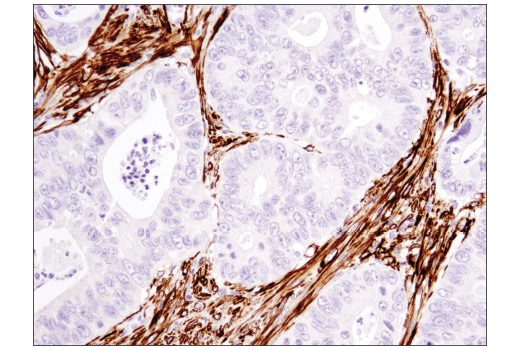 Immunohistochemical analysis of paraffin-embedded human colon carcinoma using α-Smooth Muscle Actin (1A4) Mouse mAb (IHC Formulated).