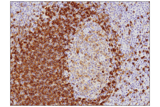 Immunohistochemical analysis of paraffin-embedded human tonsil using CD79B (D7V2F) Rabbit mAb.