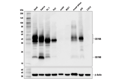 Western blot analysis of extracts from various cell lines and tissues using CD79B (D7V2F) Rabbit mAb (upper) and β-Actin (D6A8) Rabbit mAb #8457 (lower).