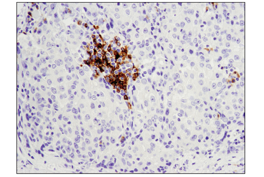 Immunohistochemical analysis of paraffin-embedded human ductal carcinoma of the breast using CD79B (D7V2F) Rabbit mAb performed on the Leica® BOND™ Rx.