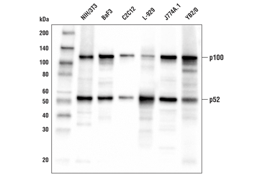Western blot analysis of extracts from various cell lines using NF-κB2 p100/p52 (D9S3M) Rabbit mAb.