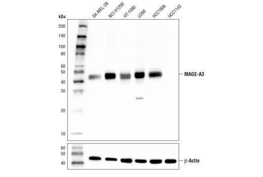 Polyclonal Antibody - MAGE-A3 Antibody - Immunoprecipitation, Western Blotting, UniProt ID P43357, Entrez ID 4102 #25800 - #25800