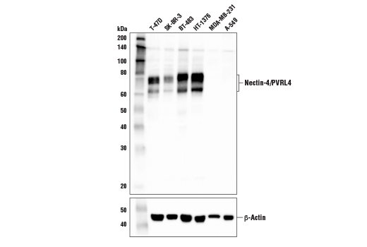 Western blot analysis of extracts from various cell lines using Nectin-4/PVRL4 Antibody (upper) and β-Actin (D6A8) Rabbit mAb #8457 (lower). As expected, Nectin-4/PVRL4 expression is not detected in either MDA-MB-231 or A-549 cells.
