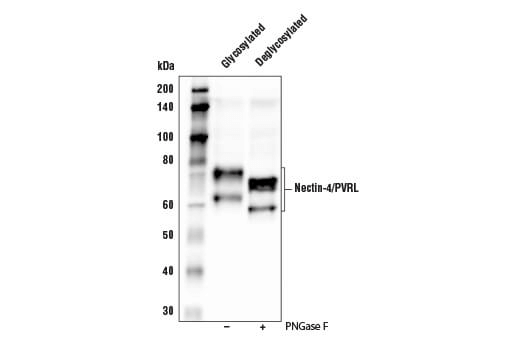 Western blot analysis of extracts from HT-1376 cells, untreated (-) or treated with PNGase F (+), using Nectin-4/PVRL4 Antibody.