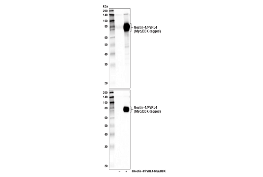 Western blot analysis of extracts from 293T cells, mock transfected (-) or transfected with a construct expressing Myc/DDK-tagged full-length human Nectin-4/PVRL4 protein (hNectin-4/PVRL4-Myc/DDK; +), using Nectin-4/PVRL4 Antibody (upper) and DYKDDDDK Tag Antibody #2368 (lower).