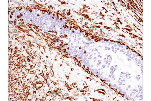 Immunohistochemical analysis of paraffin-embedded human ductal carcinoma of the breast using α-Smooth Muscle Actin (D4K9N) XP<sup>®</sup> Rabbit mAb.